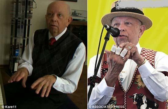 پیانو نوازی پیرمرد هنرمند با انگشتان قطع شده!+عکس